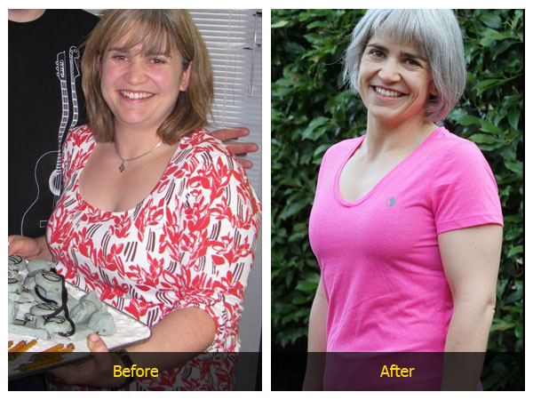 weight loss surgery santa rosa ca